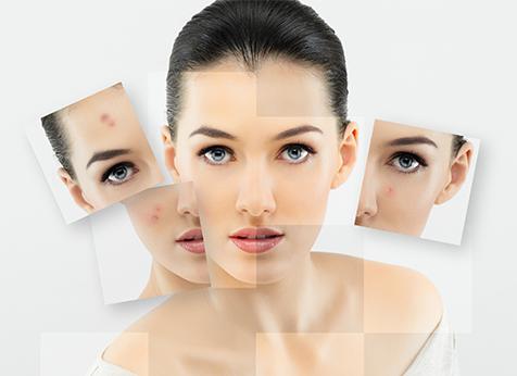 como remover acne do rosto