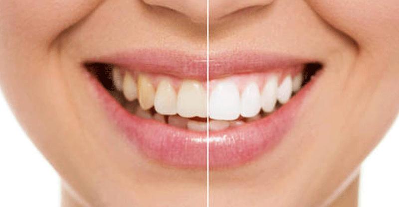 Como Fazer Clareamento Dental Caseiro Como Fazer