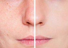remover manchas de acne