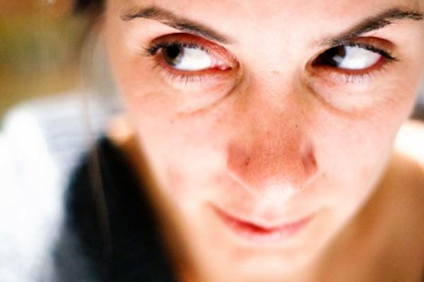 como prevenir olheiras naturalmente