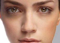 prevenir olheiras naturalmente
